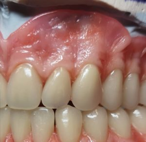 Acrylic dentures can be made to look just like natural teeth